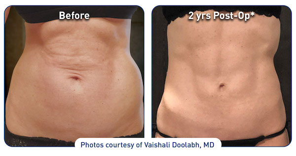Before and 2 years post op patient courtesy of Vaishali Doolabh, MD