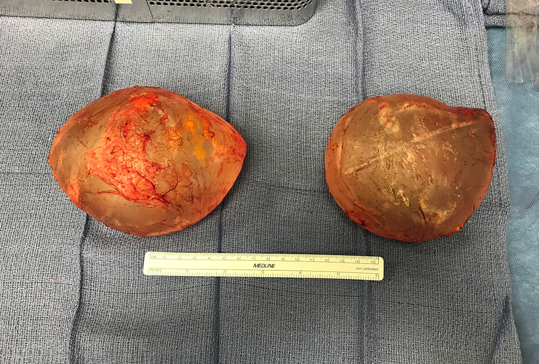 Exhumed breast implants on table.