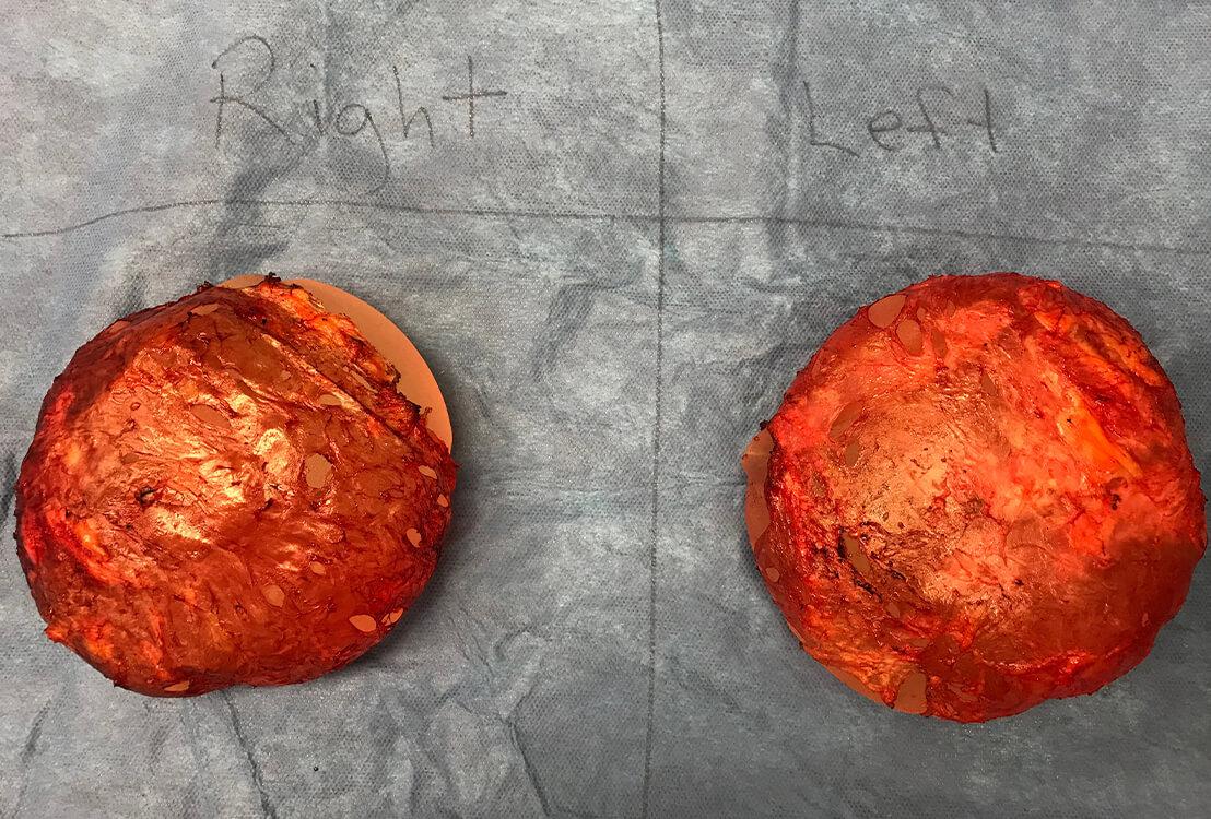 Breast implants on table.