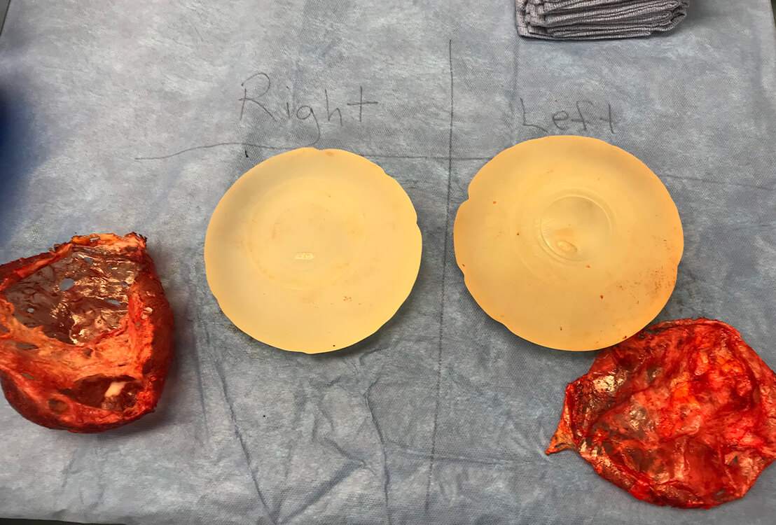New breast implants next to old ones.