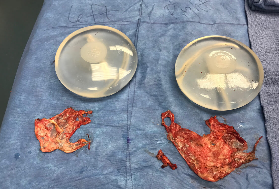 New breast implants next to old remains of previous implants.
